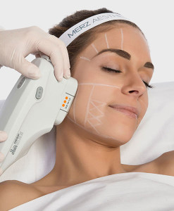 Merz Ultherapy